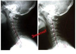 Female Chiropractor Irvine CA Corrected Neck